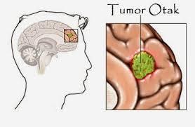 Pengobatan Tumor Otak Tanpa Operasi